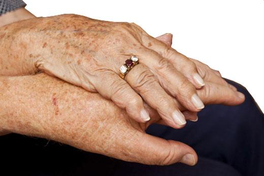 Délivre des taches de pigment sur la personne